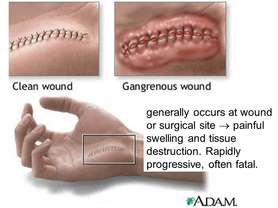 generally occurs at wound or surgical site  painful swelling and tissue destruction.