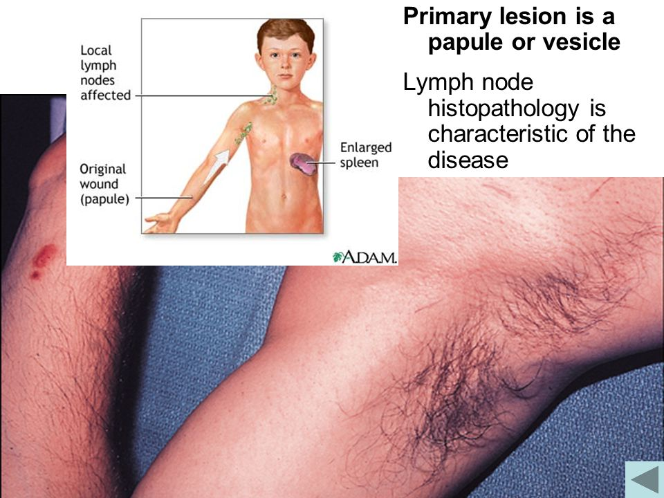 Primary lesion is a papule or vesicle