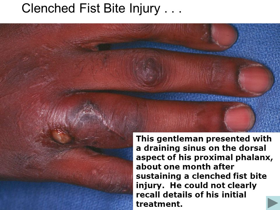 Clenched fist injury