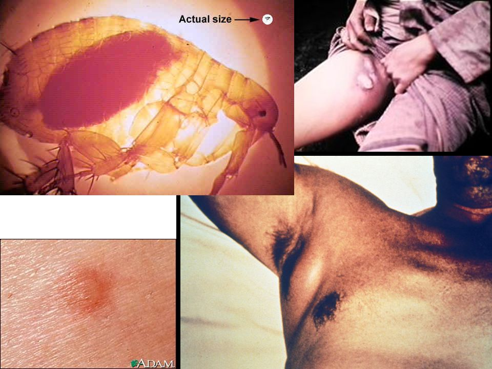 Femoral bubo: Most common site of, tender, swollen, lymph node in patients with plague