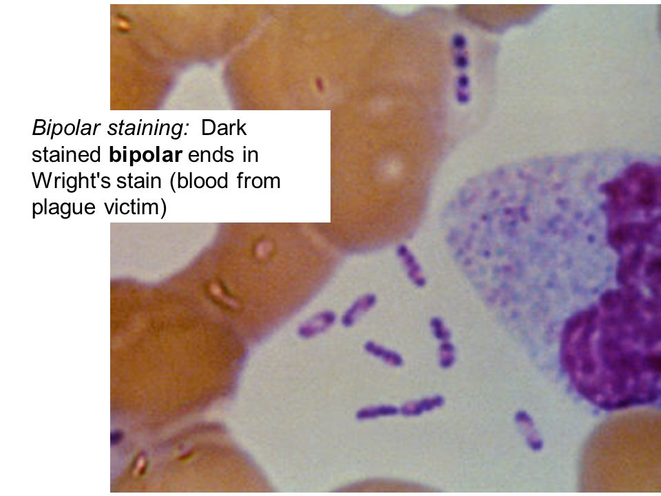 Bipolar staining: Dark stained bipolar ends in Wright s stain (blood from plague victim)
