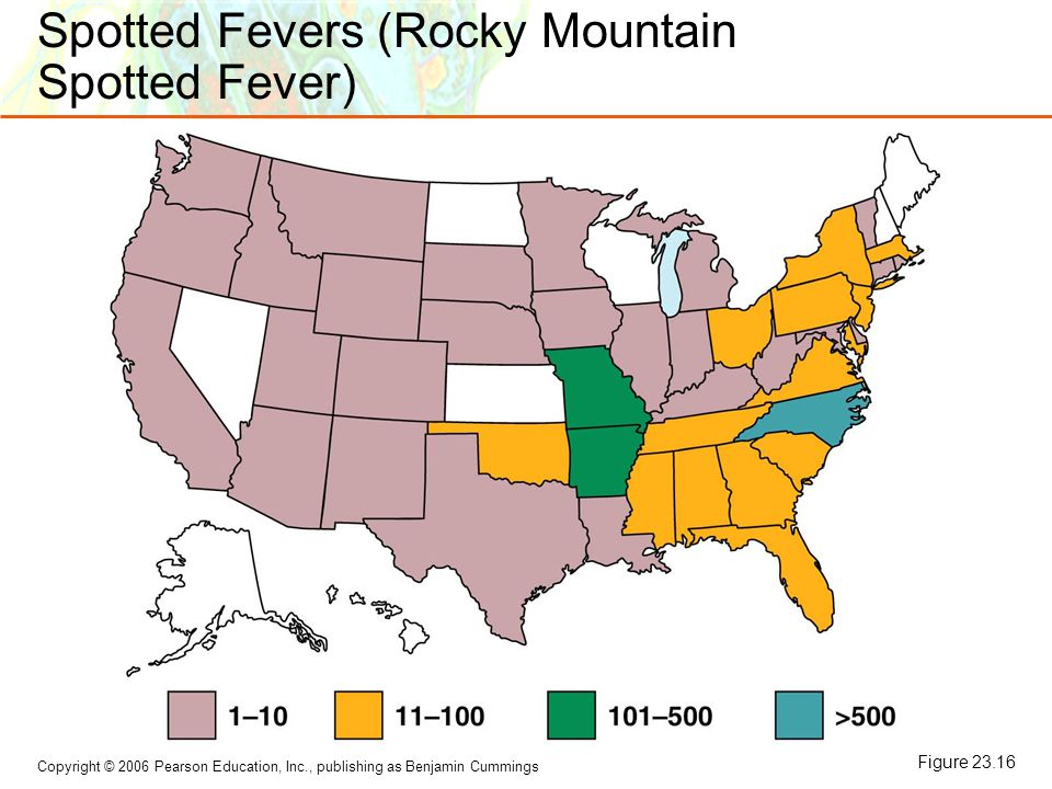 Spotted Fevers (Rocky Mountain Spotted Fever)