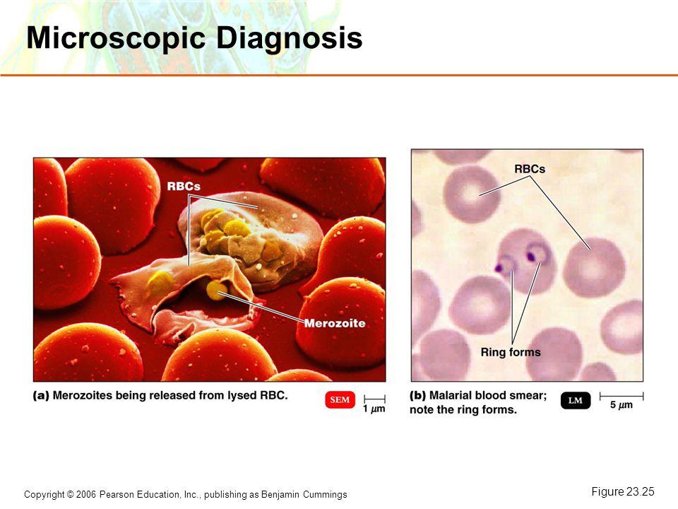 Microscopic Diagnosis
