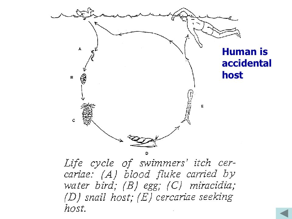 Human is accidental host