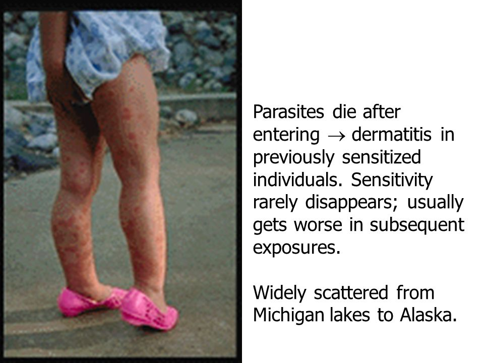 Parasites die after entering  dermatitis in previously sensitized individuals. Sensitivity rarely disappears; usually gets worse in subsequent exposures.