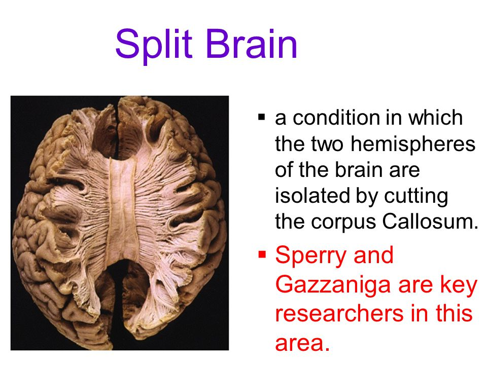 Split Brain Sperry and Gazzaniga are key researchers in this area.