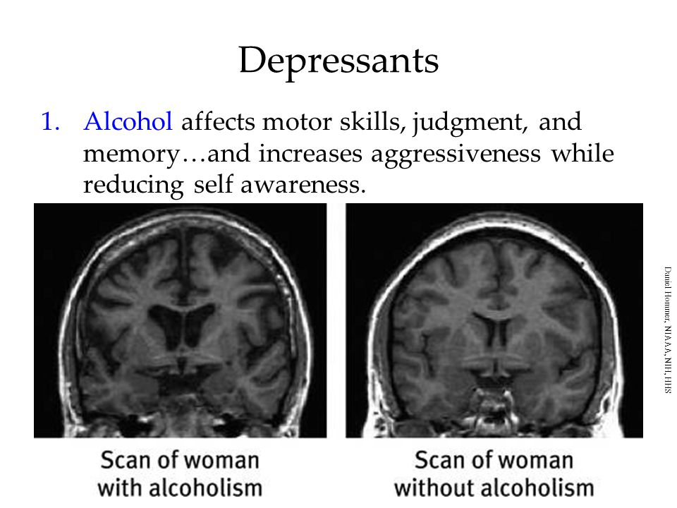 Depressants Alcohol affects motor skills, judgment, and memory…and increases aggressiveness while reducing self awareness.