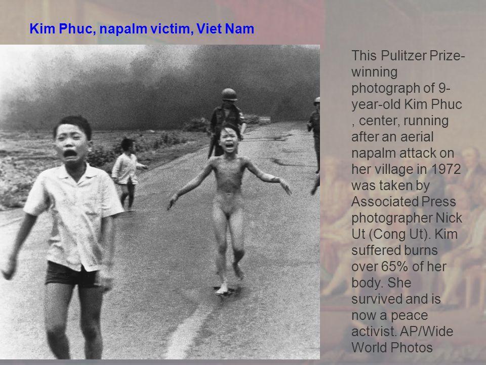 Kim Phuc, napalm victim, Viet Nam