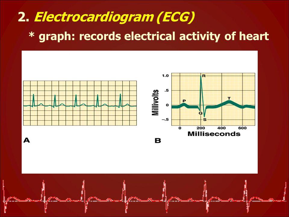 2. Electrocardiogram (ECG)