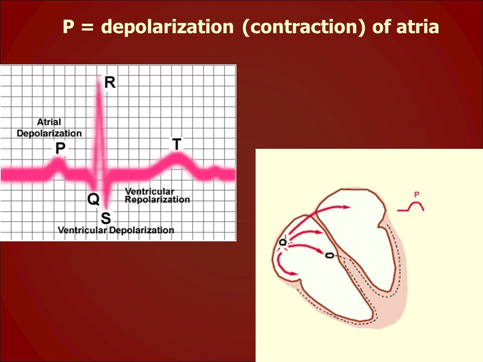 P = depolarization (contraction) of atria