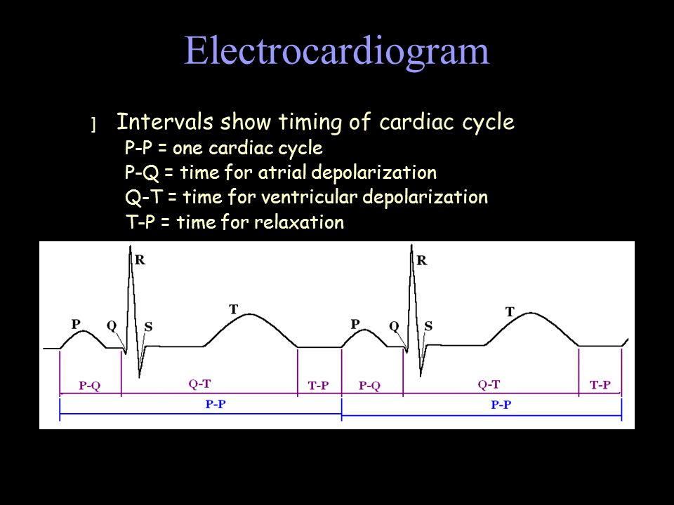 Electrocardiogram Intervals show timing of cardiac cycle