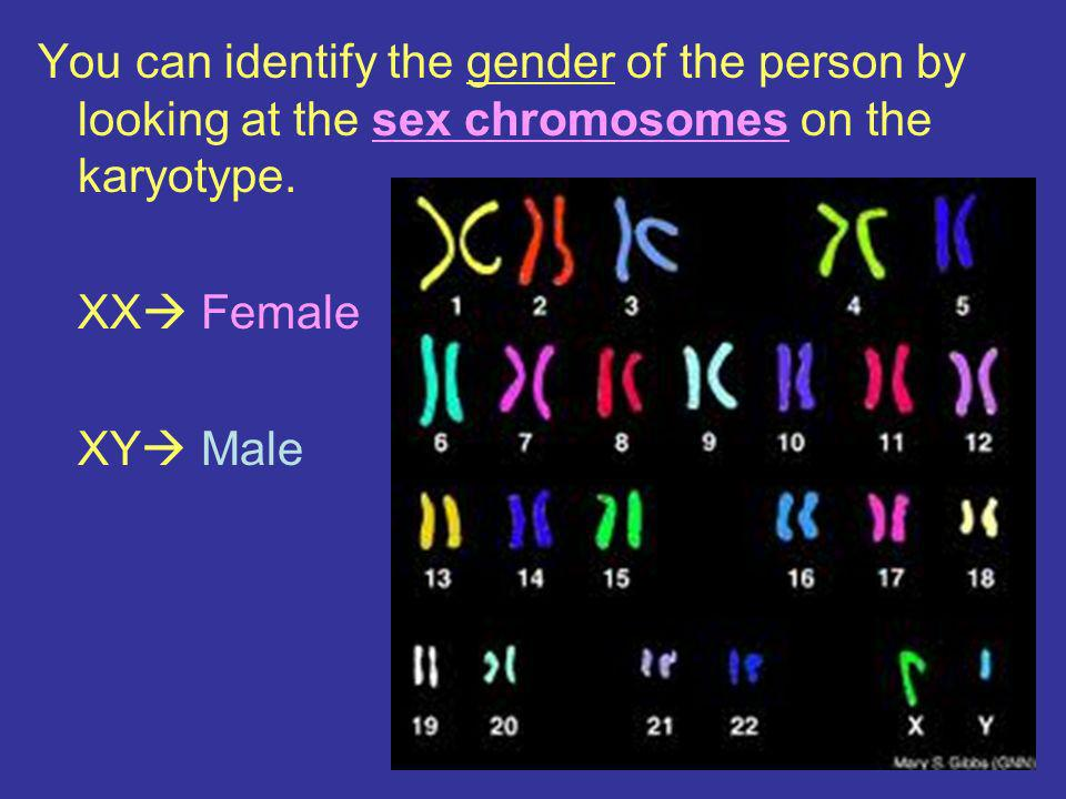 You can identify the gender of the person by looking at the sex chromosomes on the karyotype.