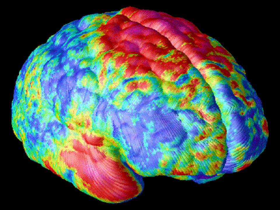 http://www.schizophrenia.com/research/schiz.brain.htm