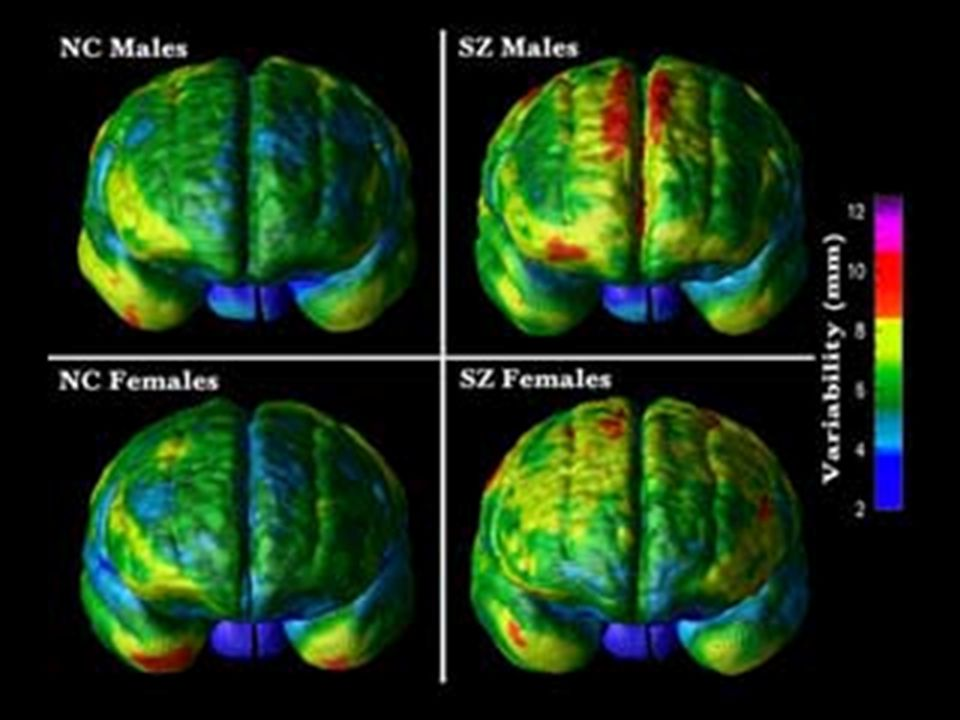http://www.schizophrenia.com/research/schiz.brain.htm Frontal composite variability of normal and schizophrenia brains by gender.