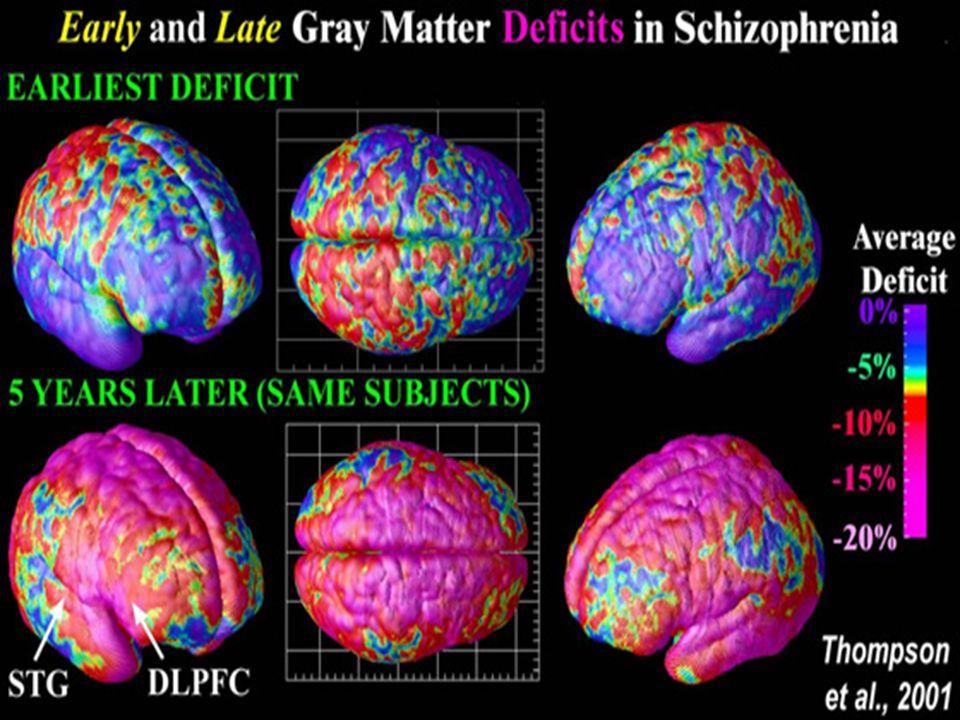 http://www.schizophrenia.com/schizpictures.html