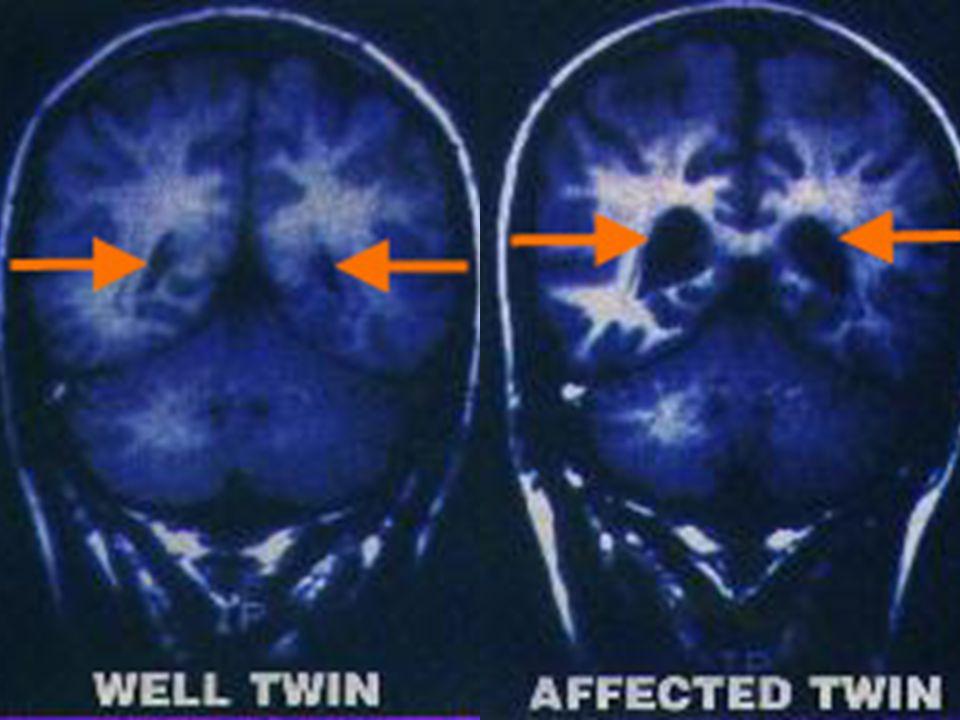 http://schizophrenia.com/research/hereditygen.htm