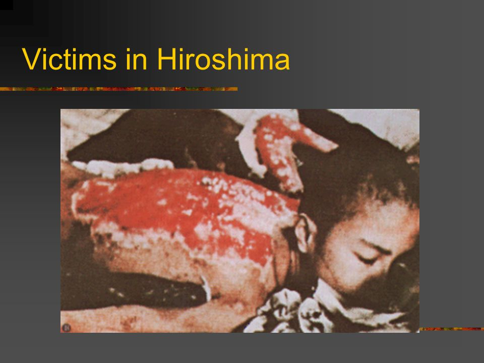 Victims in Hiroshima Ch 14 Sec 4 End of the axis in Europe 03 02 12