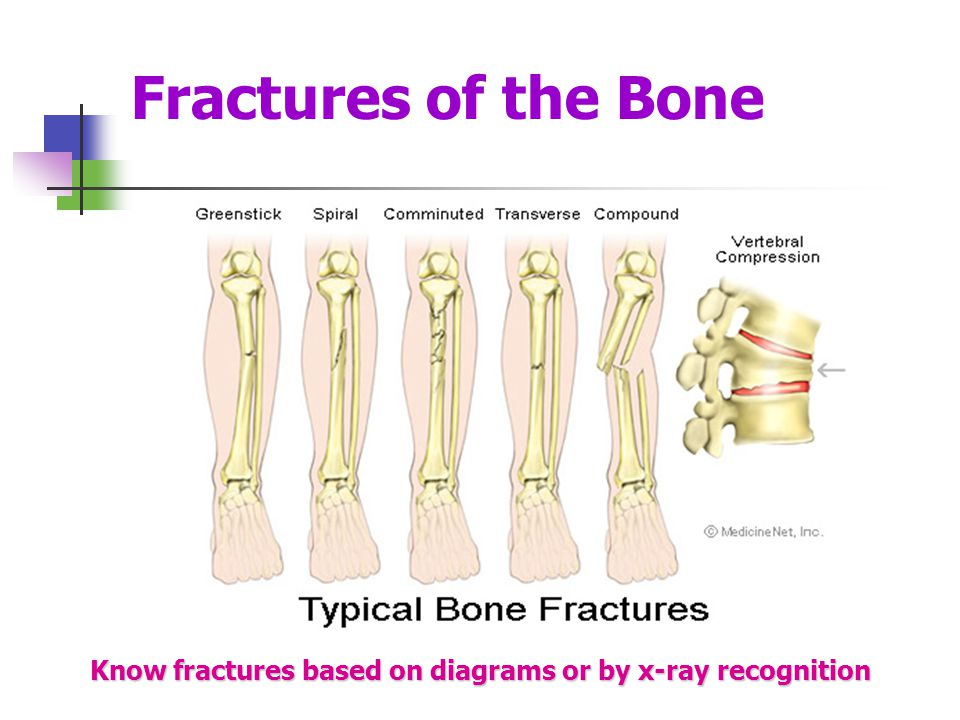 Fractures of the Bone Know fractures based on diagrams or by x-ray recognition