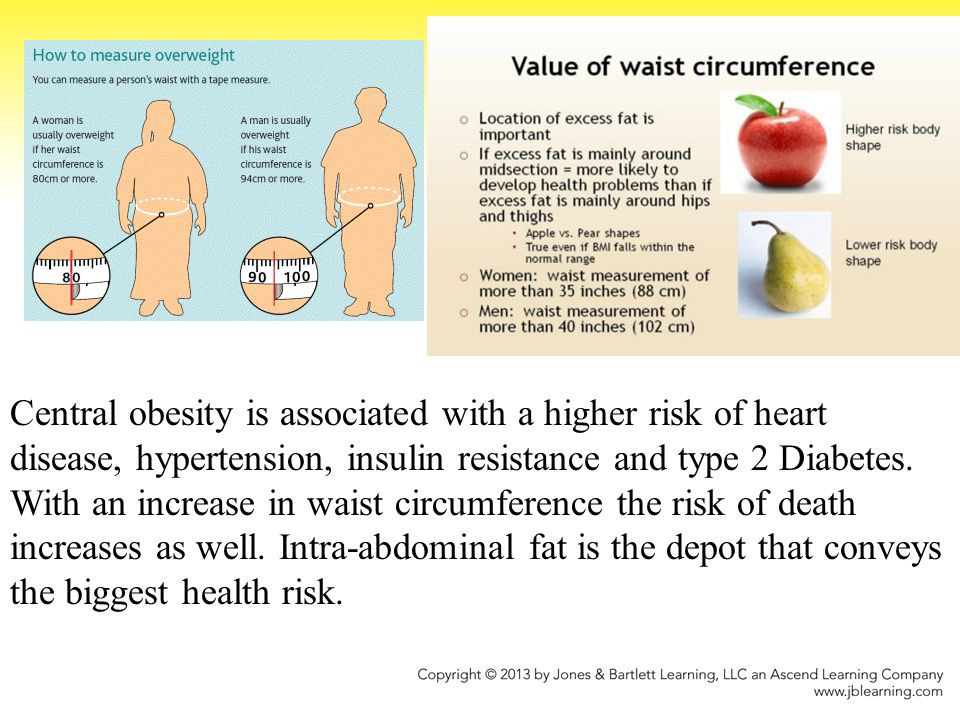 Central obesity is associated with a higher risk of heart disease, hypertension, insulin resistance and type 2 Diabetes.