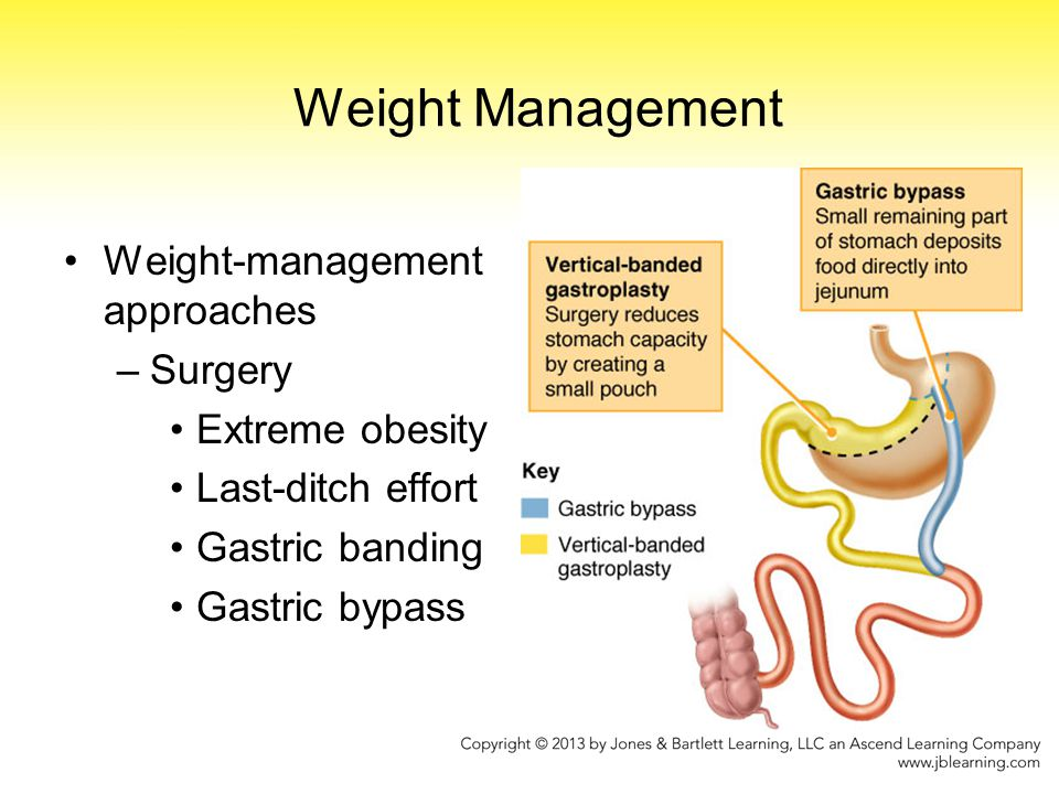 Weight Management Weight-management approaches Surgery Extreme obesity