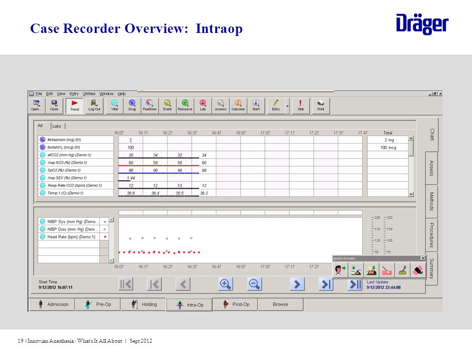 Case Recorder Overview: Intraop