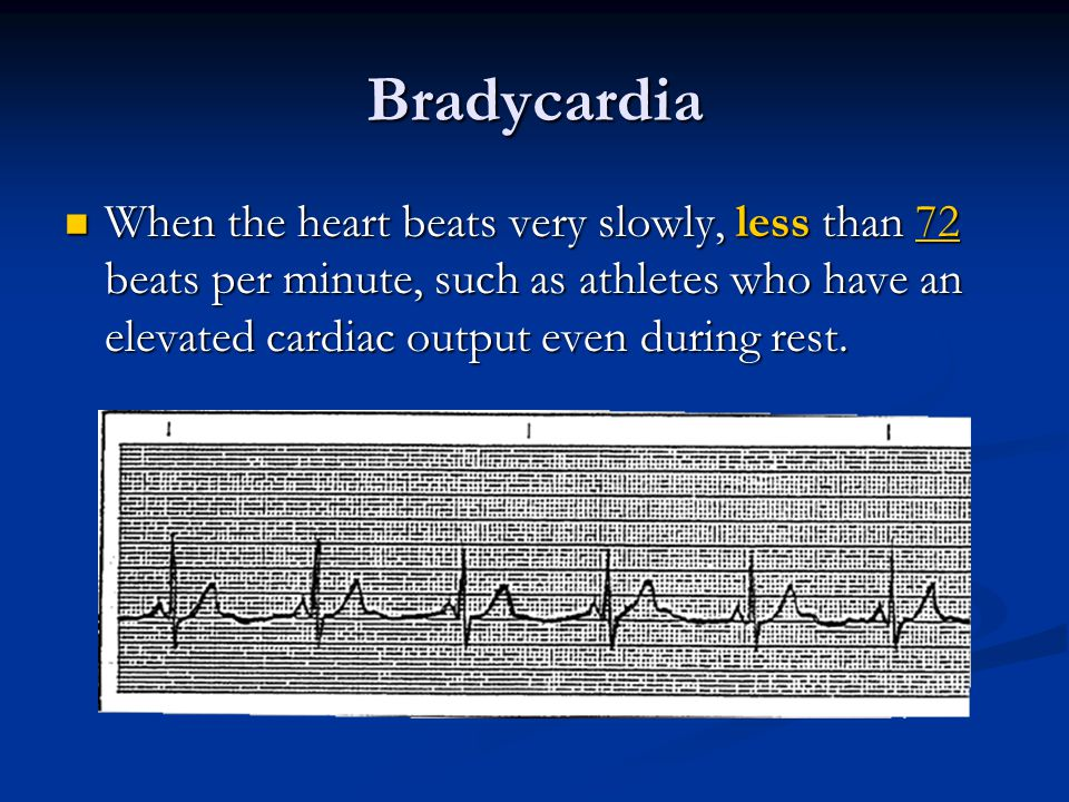 Bradycardia When the heart beats very slowly, less than 72 beats per minute, such as athletes who have an elevated cardiac output even during rest.