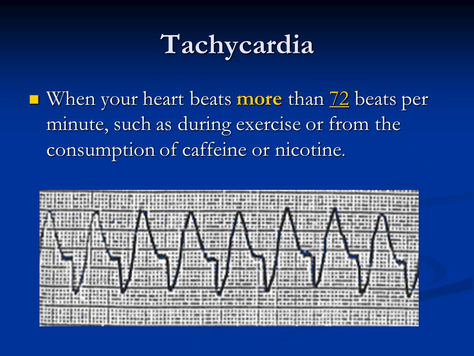 Tachycardia When your heart beats more than 72 beats per minute, such as during exercise or from the consumption of caffeine or nicotine.