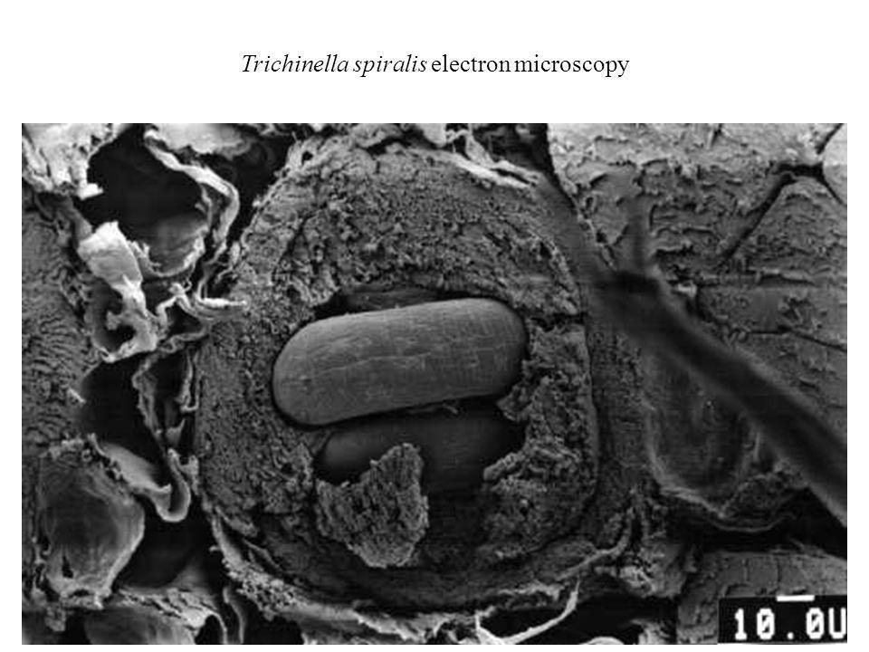 Trichinella spiralis electron microscopy