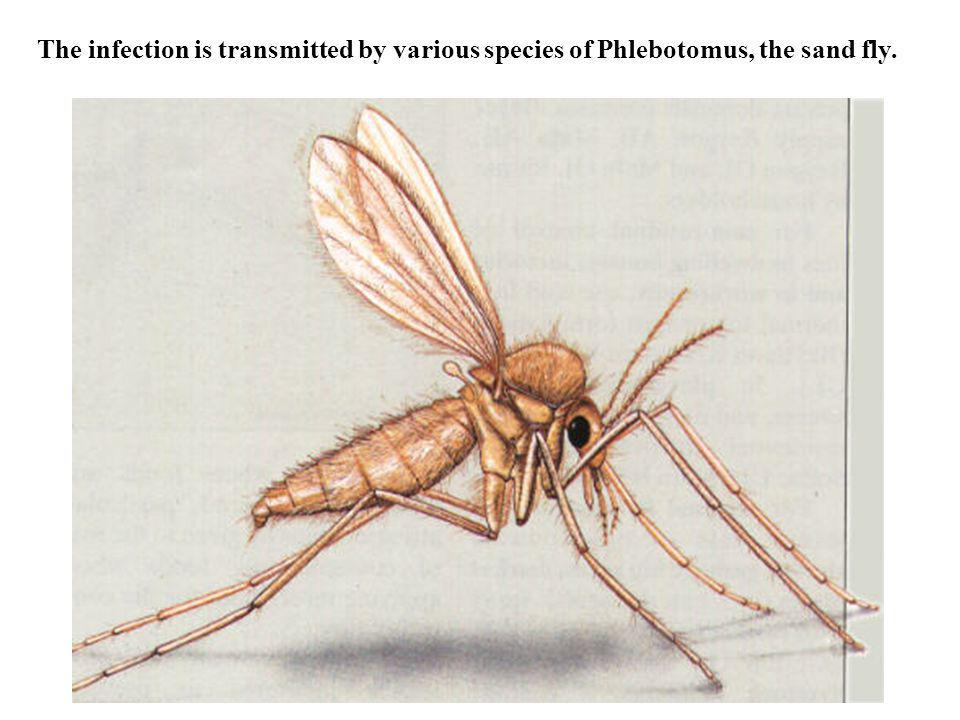 The infection is transmitted by various species of Phlebotomus, the sand fly.