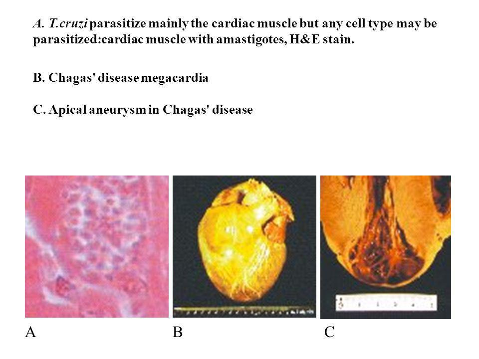 A. T.cruzi parasitize mainly the cardiac muscle but any cell type may be parasitized:cardiac muscle with amastigotes, H&E stain.