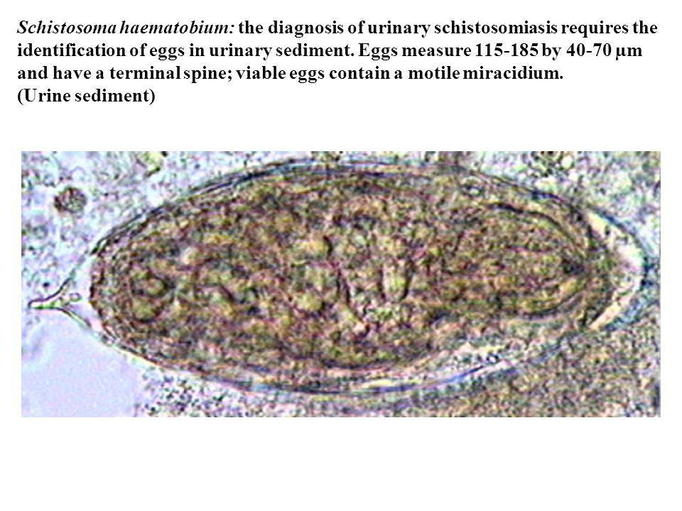 Schistosoma haematobium: the diagnosis of urinary schistosomiasis requires the