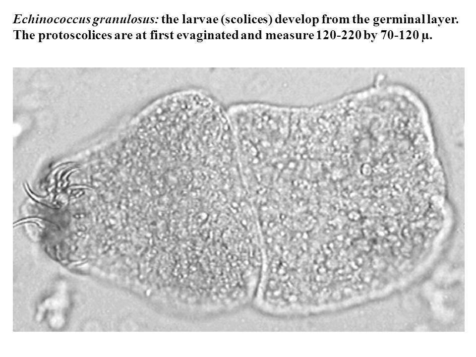 Echinococcus granulosus: the larvae (scolices) develop from the germinal layer.