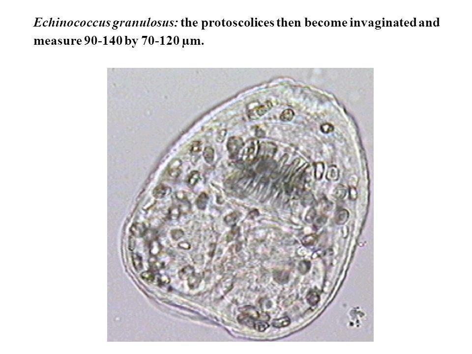 Echinococcus granulosus: the protoscolices then become invaginated and measure 90-140 by 70-120 µm.