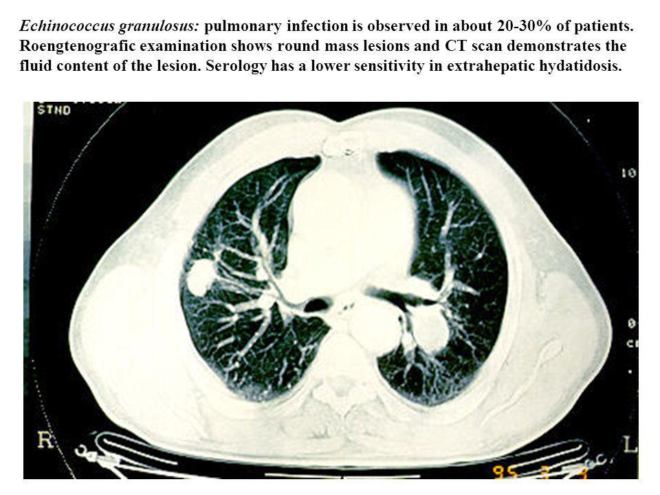 Echinococcus granulosus: pulmonary infection is observed in about 20-30% of patients. Roengtenografic examination shows round mass lesions and CT scan demonstrates the