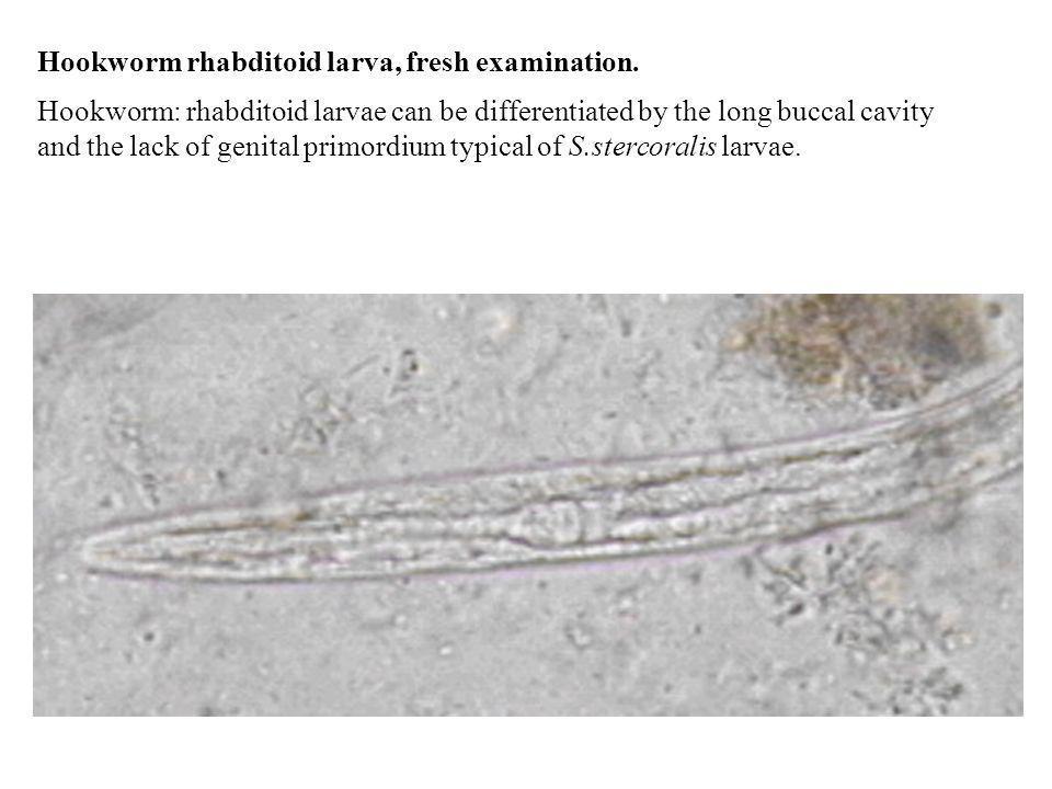 Hookworm rhabditoid larva, fresh examination.