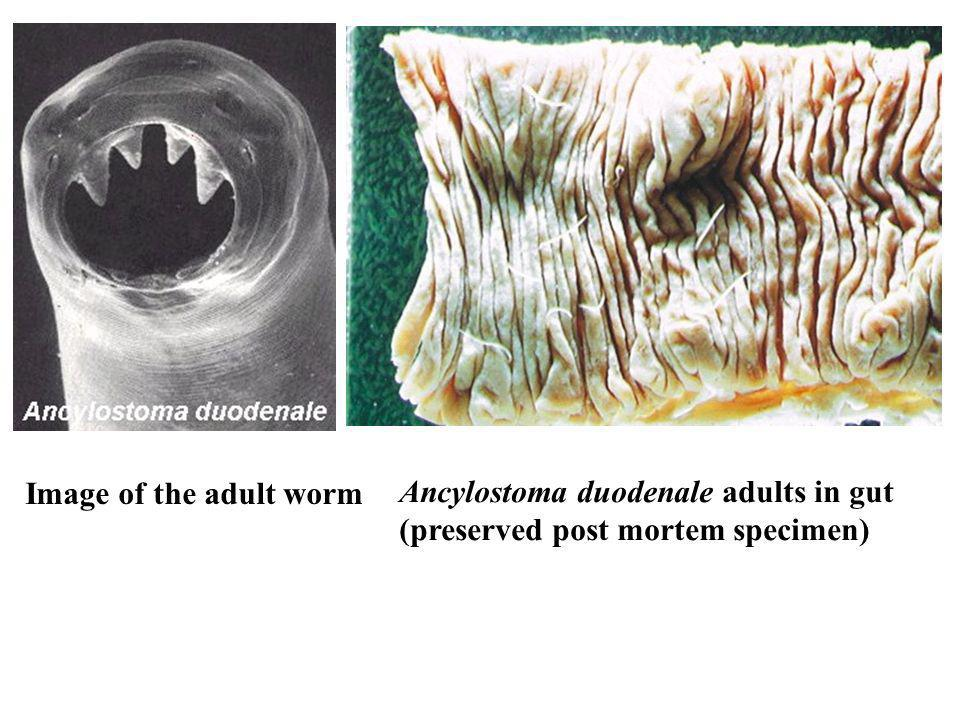 Image of the adult worm Ancylostoma duodenale adults in gut (preserved post mortem specimen)