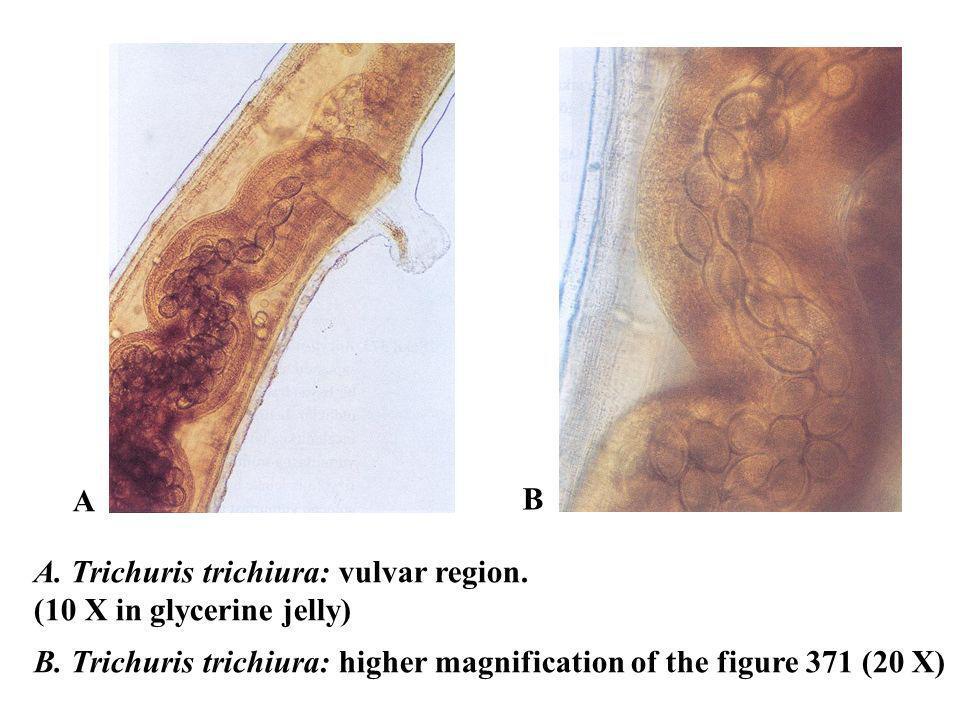 A B. A. Trichuris trichiura: vulvar region. (10 X in glycerine jelly) B.