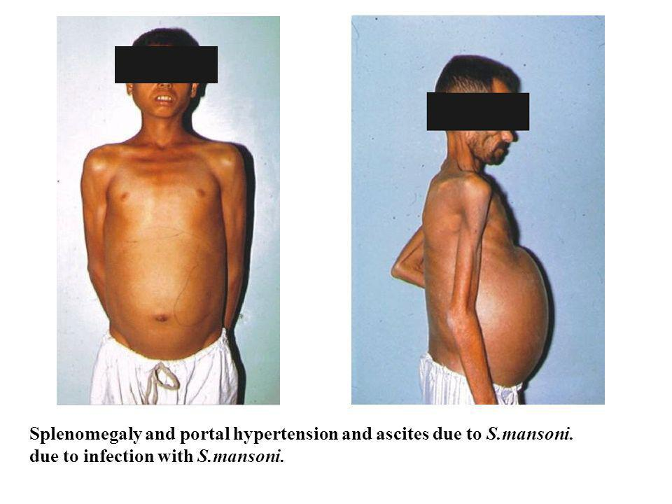 Splenomegaly and portal hypertension and ascites due to S.mansoni.