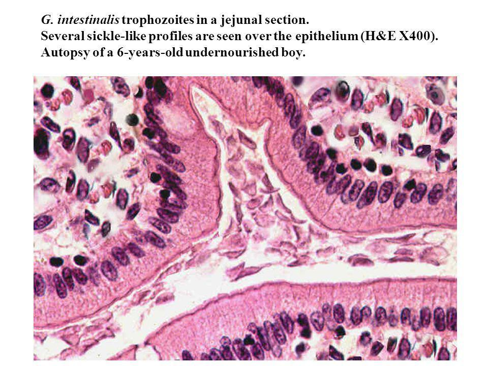 G. intestinalis trophozoites in a jejunal section
