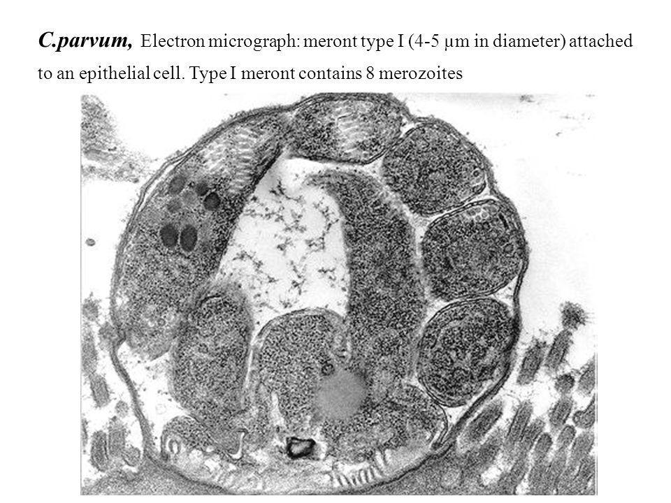 C.parvum, Electron micrograph: meront type I (4-5 µm in diameter) attached
