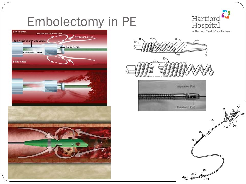 Embolectomy in PE