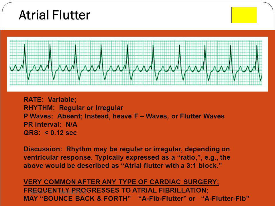 Atrial Flutter RATE: Variable; RHYTHM: Regular or Irregular