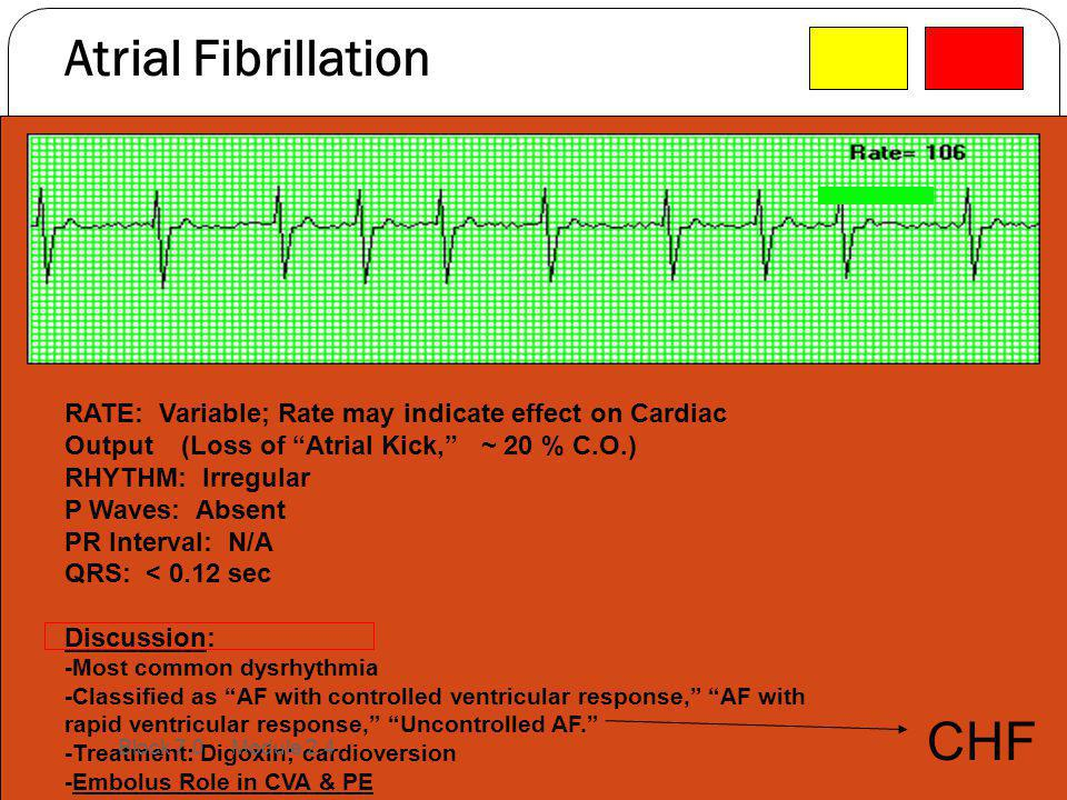 Atrial Fibrillation CHF