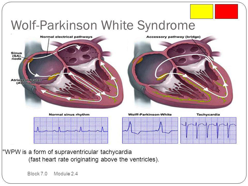 Wolf-Parkinson White Syndrome