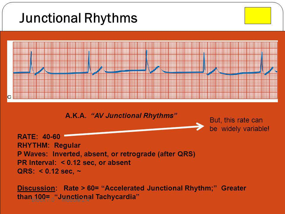 Junctional Rhythms A.K.A. AV Junctional Rhythms But, this rate can