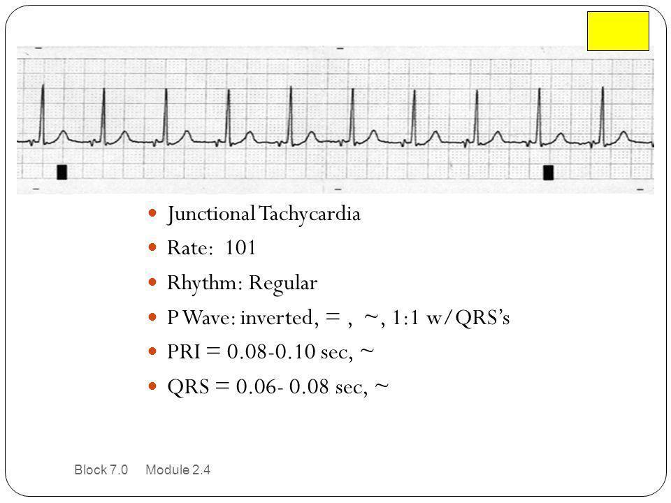Junctional Tachycardia Rate: 101 Rhythm: Regular