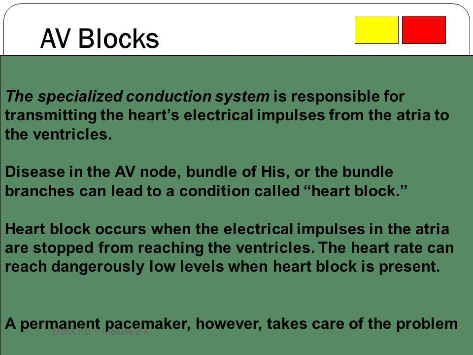 AV Blocks The specialized conduction system is responsible for transmitting the heart's electrical impulses from the atria to the ventricles.