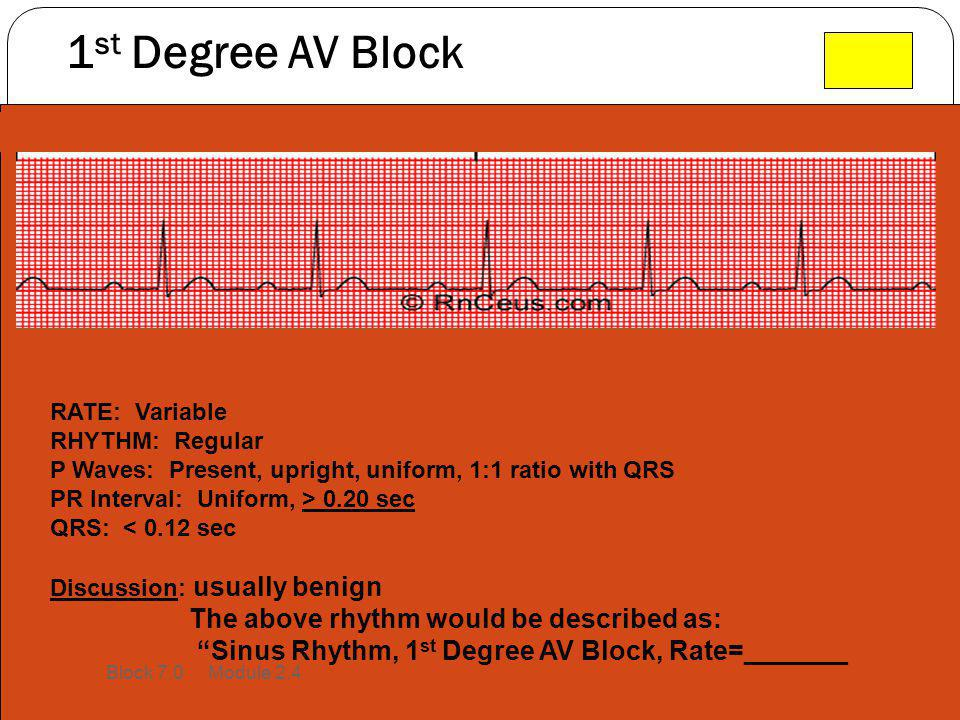 1st Degree AV Block The above rhythm would be described as: