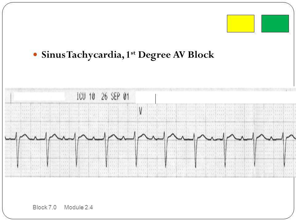 Sinus Tachycardia, 1st Degree AV Block
