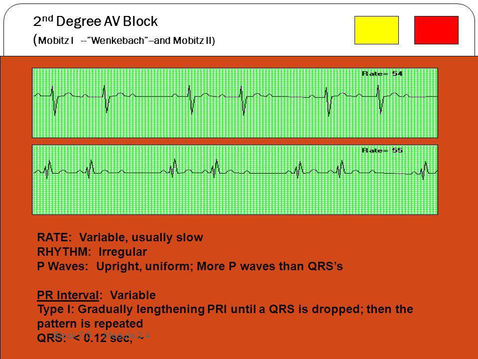 2nd Degree AV Block (Mobitz I -- Wenkebach --and Mobitz II)